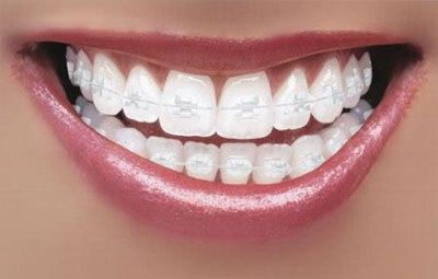 6-Month-Braces-Clear-Raleigh