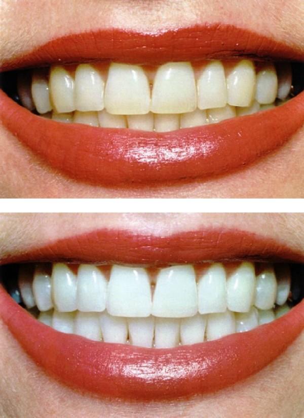 teethwhitening2