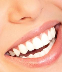 teethwhitening3