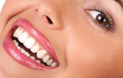 teethwhitening5