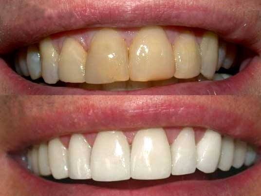 teethwhitening6